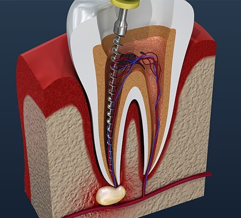 Animated root canal therapy process