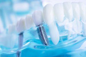dental implants model in fort valley